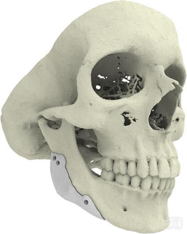 3D打印趋势:生物3D打印可以拯救生命